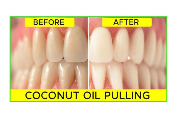 Image of oil pulling