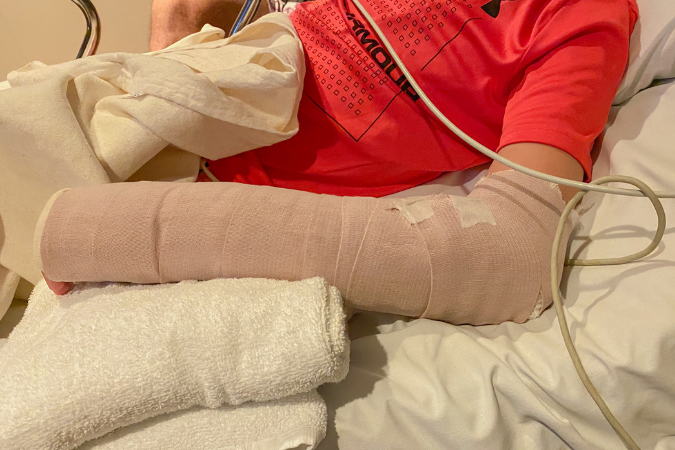 easton in a cast